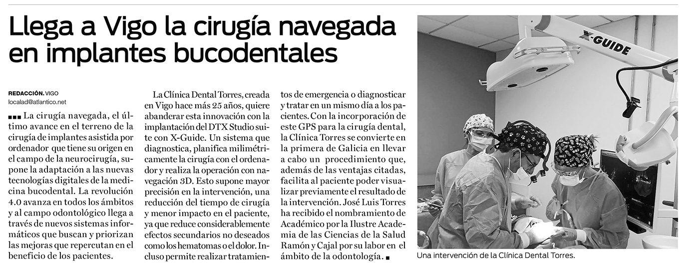 Nueva Técnica de cirugía dental en Vigo 4