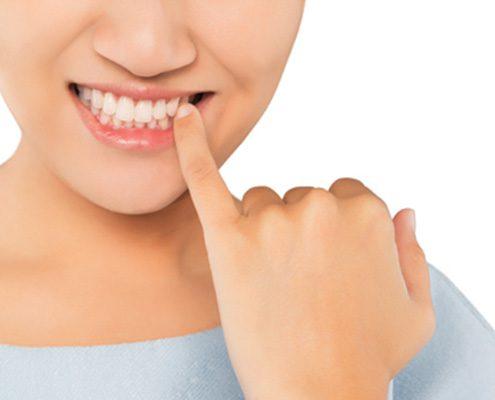 Ortodoncia lingual incógnito 1