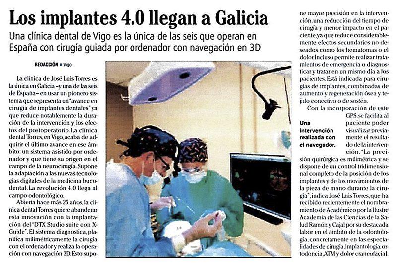 Clinica dental destacada por una técnica innovadora para la colocación Implantes dentales en Vigo 3