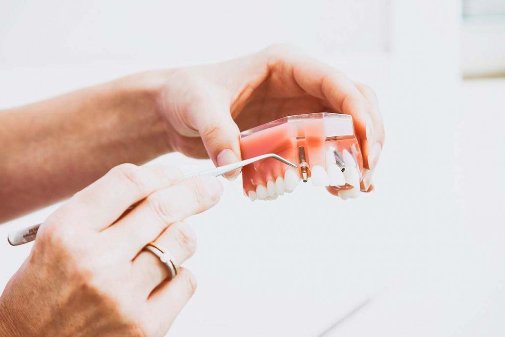 Implantes dentales 2
