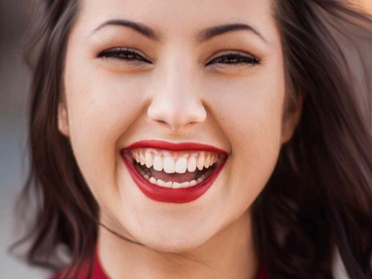 Blanqueamiento Dental (tratamiento) 1