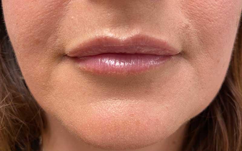 antes-y-depues-labios-acido-hialuronico-2