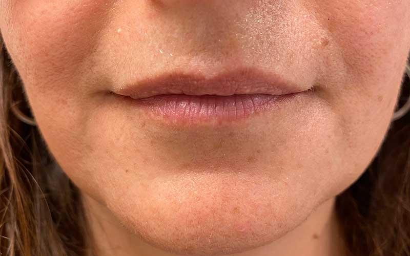 antes-y-depues-labios-acido-hialuronico