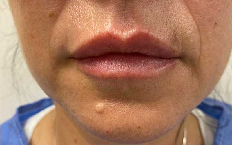 labios-acido-hialuronico-2