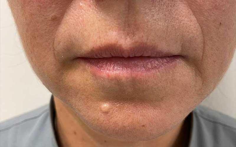 labios-acido-hialuronico