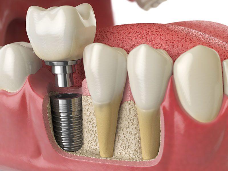 El precio de los implantes dentales 1
